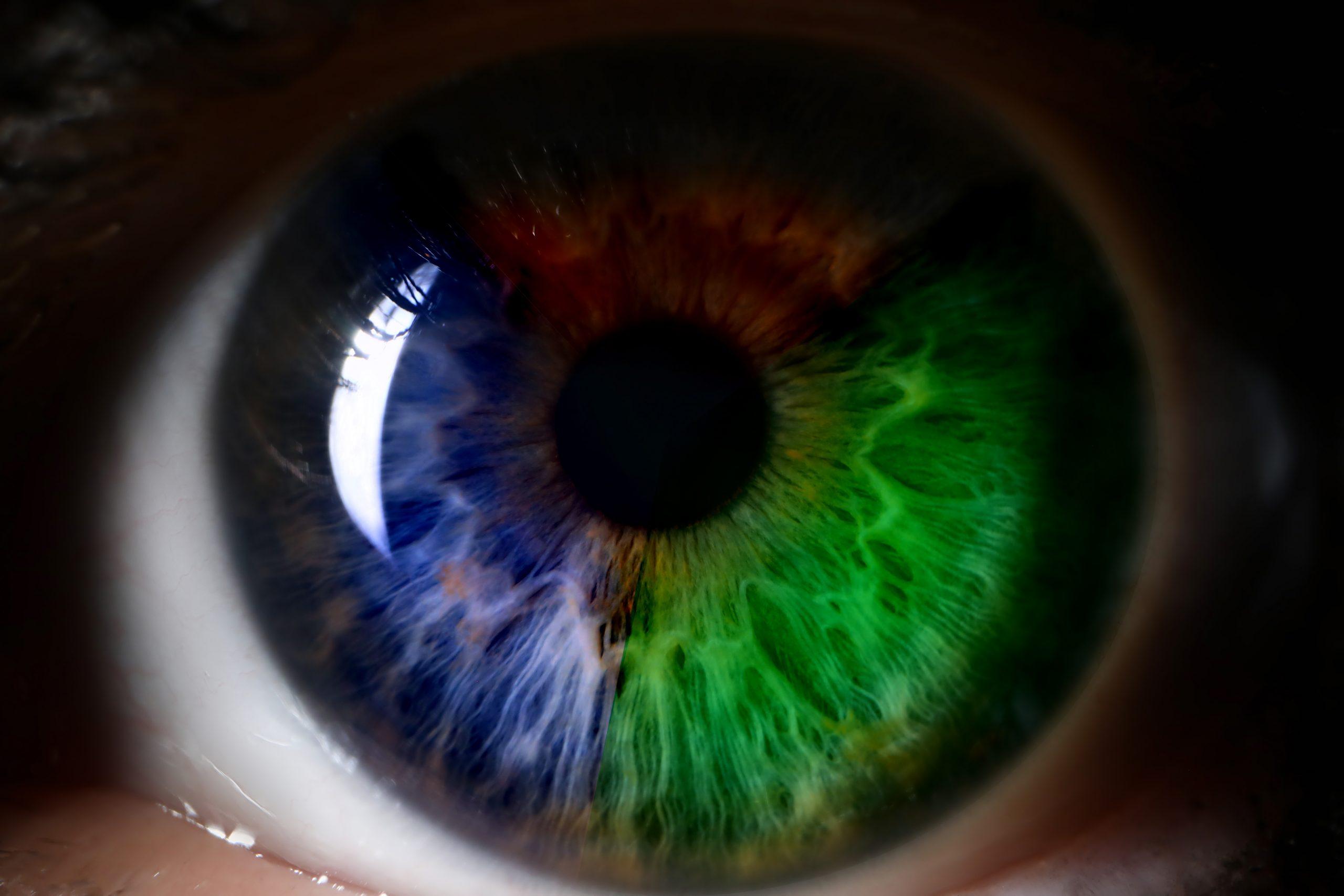 lentile mojo vision